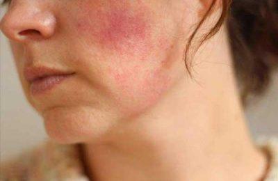 skincare cho da bị nhiễm corticoid